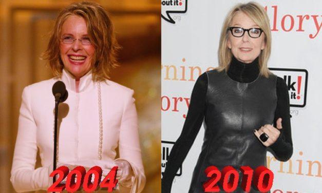 Diane Keaton Plastic Surgery: Are the Rumors True?