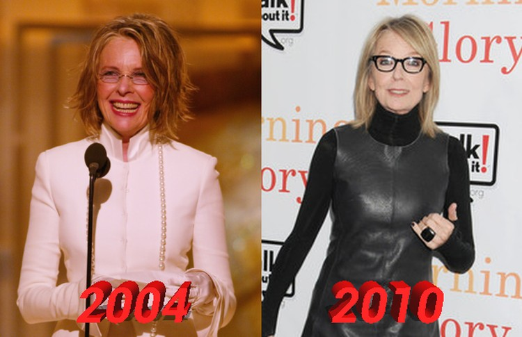 Diane Keaton face change