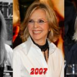 Diane Keaton plastic surgery before and after 150x150
