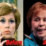 carol burnett before and after plastic surgery 150x150