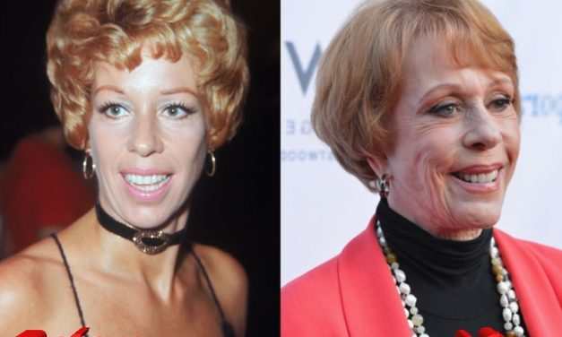 The latest news about Carol Burnett Plastic Surgery Procedures