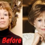 carol burnett plastic surgery before and after photos 150x150