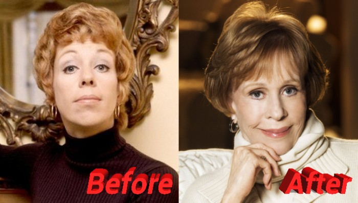 carol burnett plastic surgery before and after photos