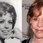 carol burnett plastic surgery photos 150x150