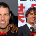 Tom Cruise before and after nose 150x150