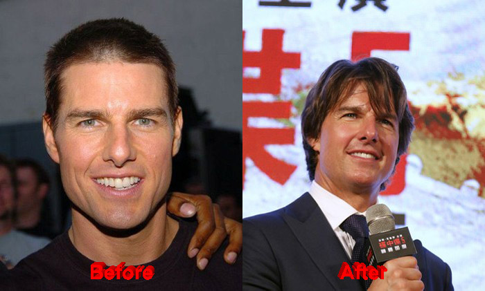 Tom Cruise before and after nose