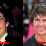 Tom Cruise before and after teeth 150x150