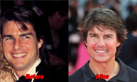 Has Tom Cruise undergone Plastic Surgery?