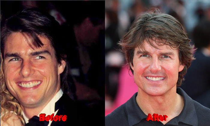 Tom Cruise before and after teeth