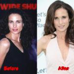 Andie MacDowell plastic surgery