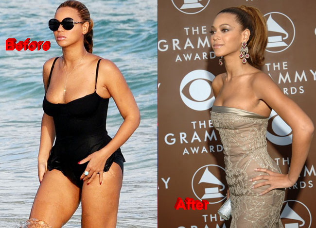 Beyoncé Plastic Surgery before and after 1