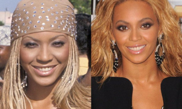 Beyoncé Plastic Surgery – Did the Singer Lighten Her Skin?