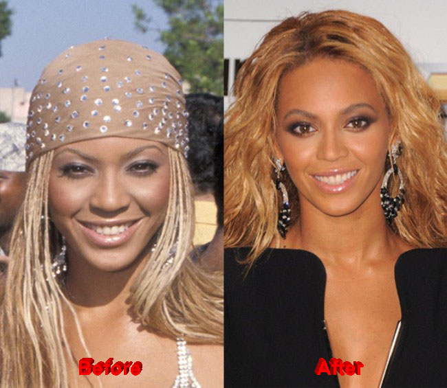 Beyoncé Plastic Surgery – Did the Singer Lighten Her Skin?