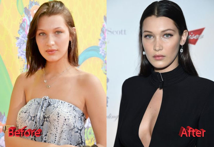 Bella Hadid Plastic Surgery Before and After