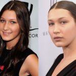 Bella Hadid Plastic Surgery Before and After2 150x150