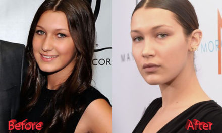 Bella Hadid Nose Job Plastic Surgery: True or Not?