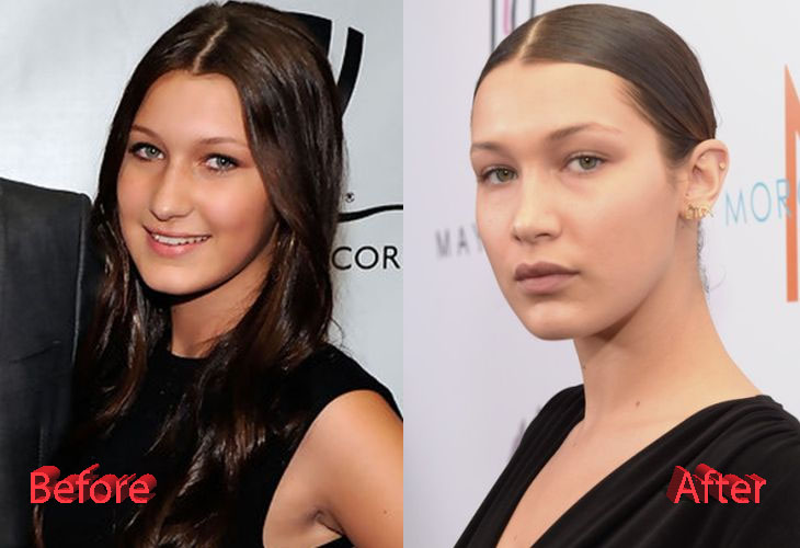 Bella Hadid Plastic Surgery Before and After2