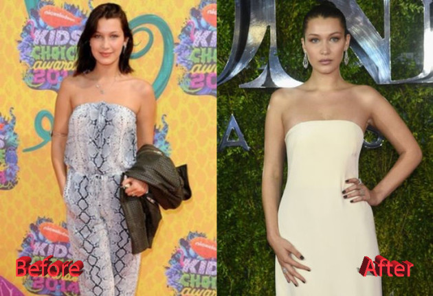 Bella Hadid Plastic Surgery Before and After3 630x431