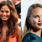 Chrissy Teigen Plastic Surgery Before and After