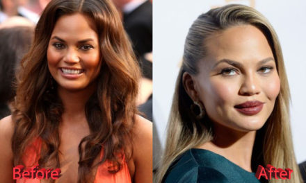 Chrissy Teigen Plastic Surgery: Just Speculations?