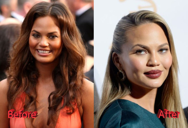 Chrissy Teigen Plastic Surgery Before and After 630x429