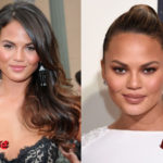 Chrissy Teigen Plastic Surgery Before and After2