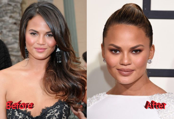 Chrissy Teigen Before and After Plastic Surgery