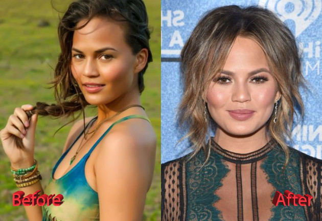 Chrissy Teigen Plastic Surgery Before and After3 630x432