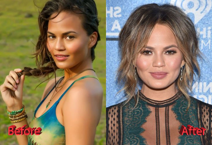 Chrissy Teigen Plastic Surgery Before and After3