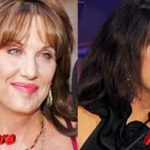 Dr. Phil wife Robin McGraw nose job before and after 150x150