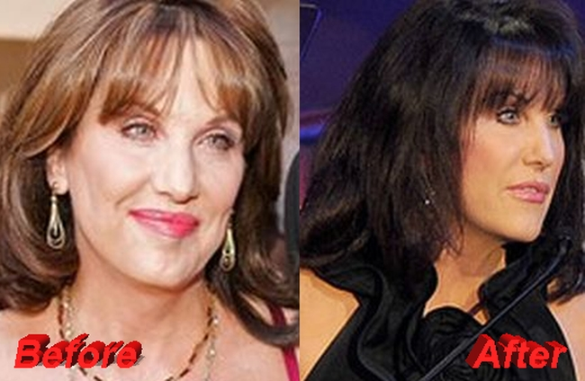 Dr. Phil wife Robin McGraw nose job before and after