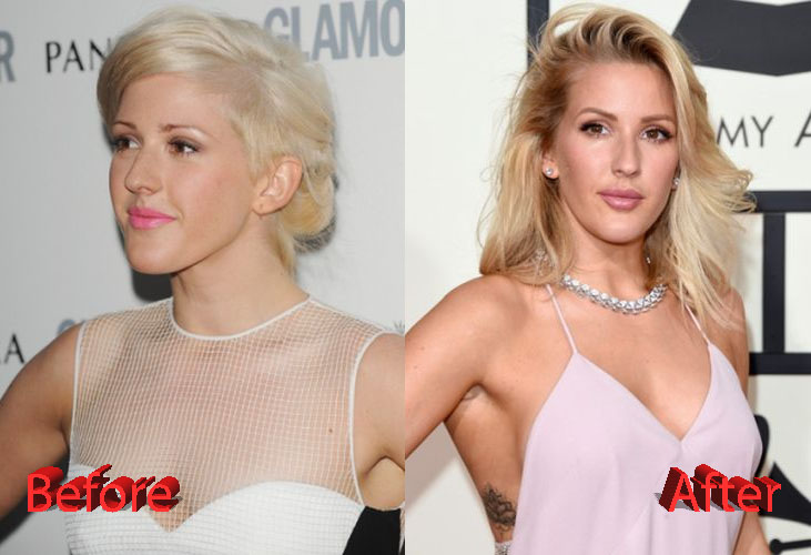 Ellie Goulding Plastic Surgery Before and After