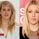 Ellie Goulding Plastic Surgery Before and After2