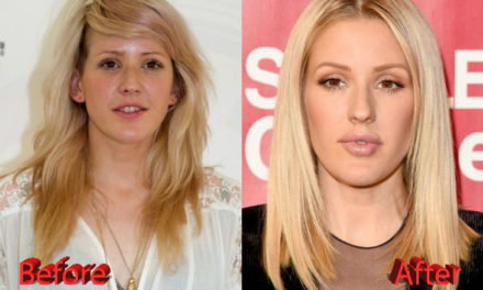 Ellie Goulding Plastic Surgery: Just Veggies?