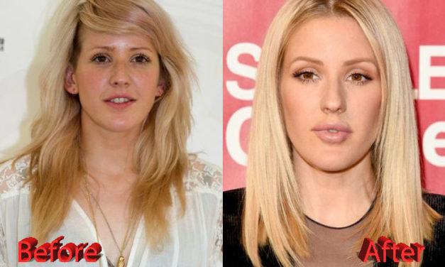 Ellie Goulding Plastic Surgery: Just Veggies?