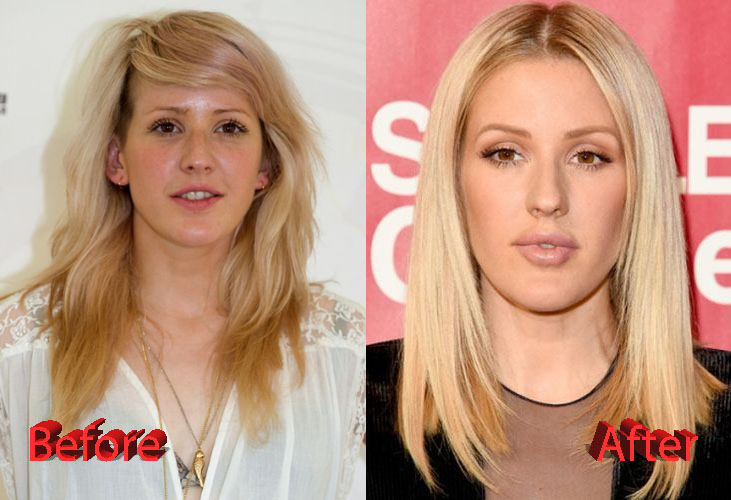 Ellie Goulding Before and After Plastic Surgery