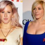Ellie Goulding Plastic Surgery Before and After3