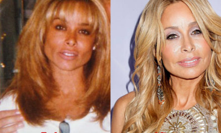 How Much Plastic Surgery has Faye Resnick Had?