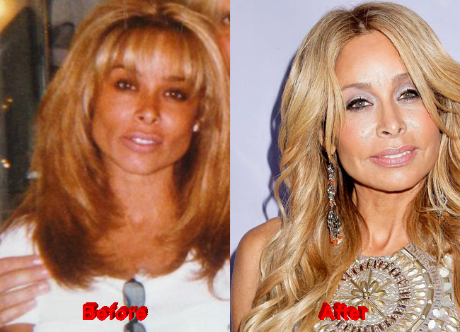 Faye Resnick Plastic Surgery before after nose job