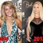 Heidi Montag plastic surgery 2006-2012