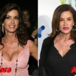 Janice Dickinson before and after plastic surgery 150x150