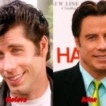 John Travolta Plastic Surgery facelift before after