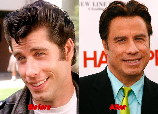 John Travolta Plastic Surgery facelift before after