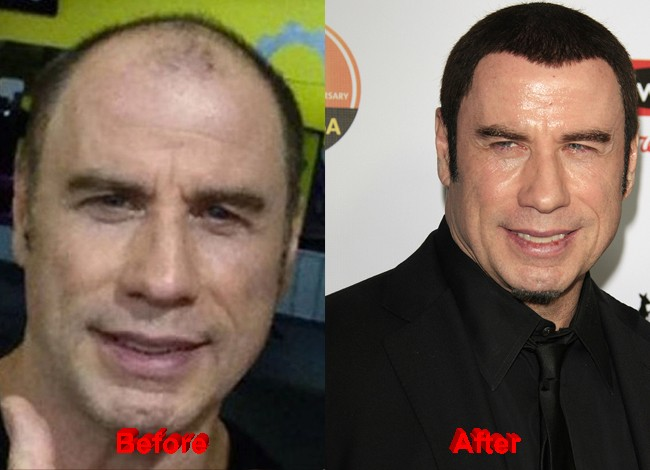 John Travolta Plastic Surgery hair before after