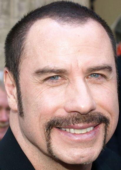 John Travolta before hair Plastic Surgery