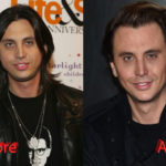 Jonathan Cheban Plastic Surgery Before and After