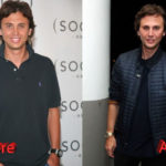 Jonathan Cheban Plastic Surgery Before and After2 150x150
