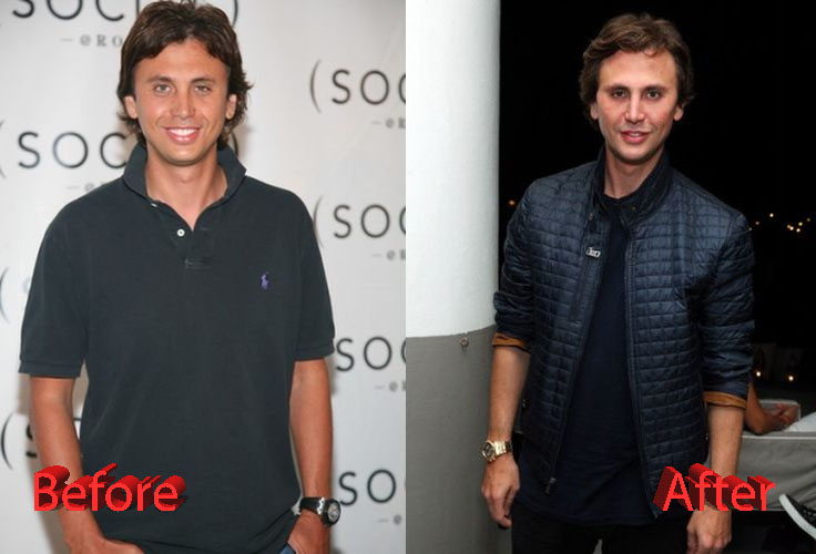Jonathan Cheban Before and After Plastic Surgery