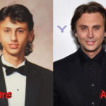 Jonathan Cheban Plastic Surgery Beforeand After3