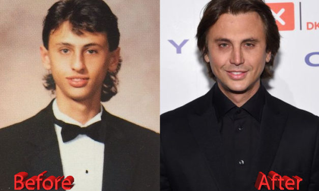 Jonathan Cheban Plastic Surgery: You Be The Judge